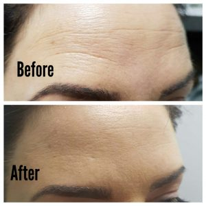 Before and After photo of antiwrinkle botox injections