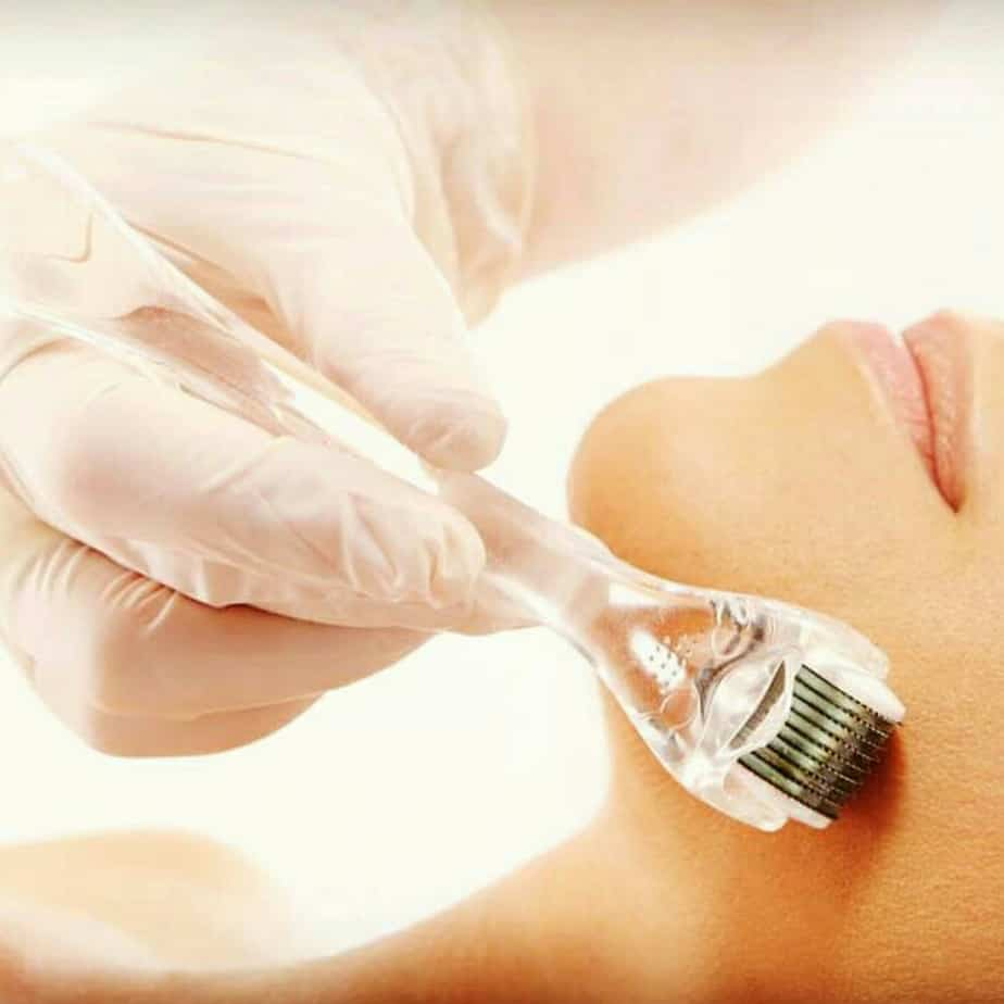Why Everyone is Talking About Microneedling
