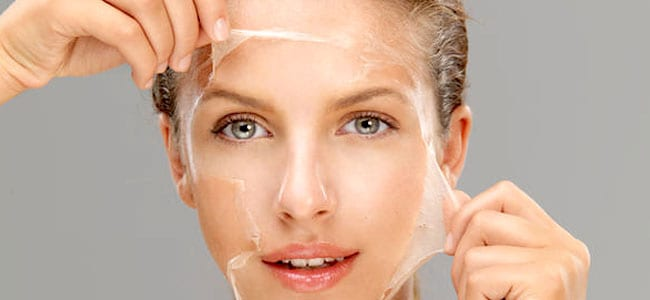 Skin Peels All you Need to Know